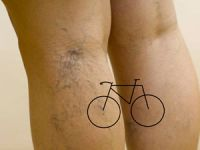 варикоз и велосипед